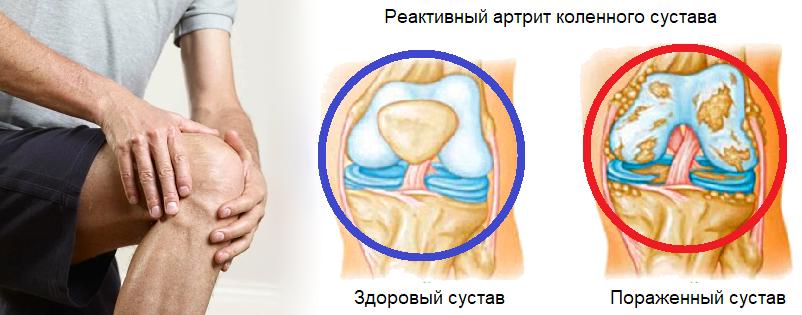 реактивный артрит простатит