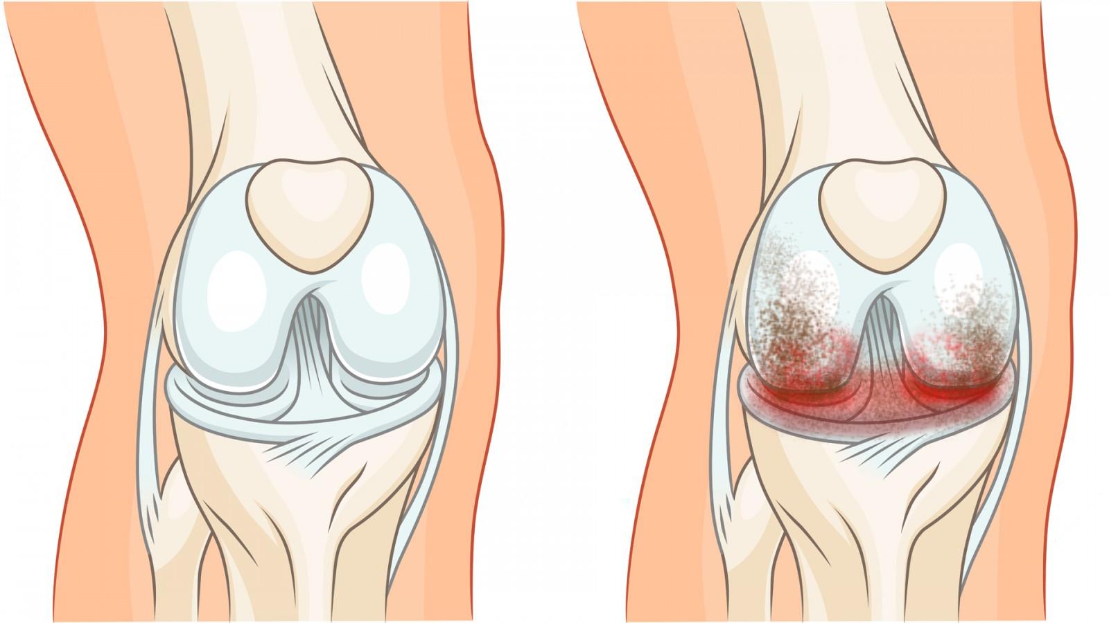 Остеохондроз симптомы и признаки лечение