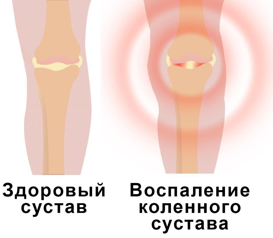 Лечение остеохондроза шейного отдела по болотову