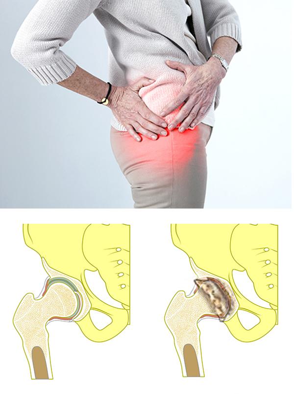 Обостренный остеохондроз как лечить