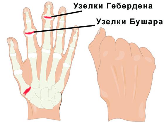 Методы лечения ревматоидного артрита