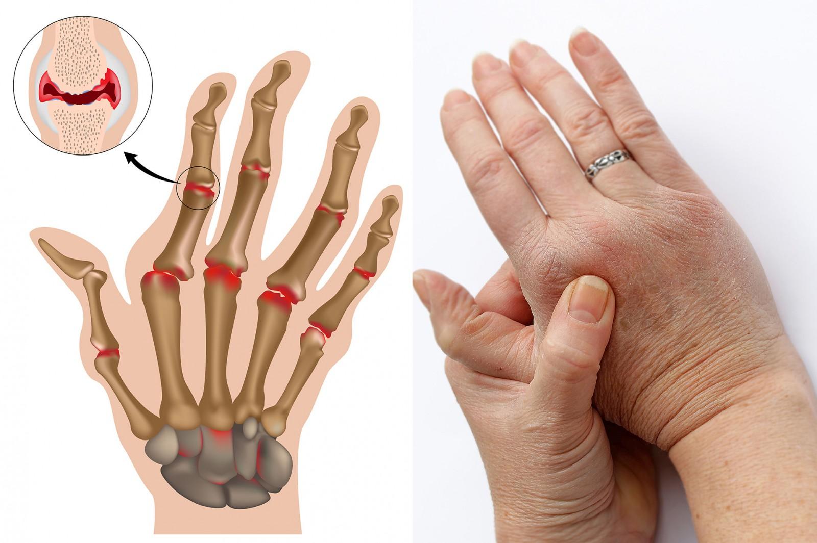 Артрит нижних конечностей ног лечение