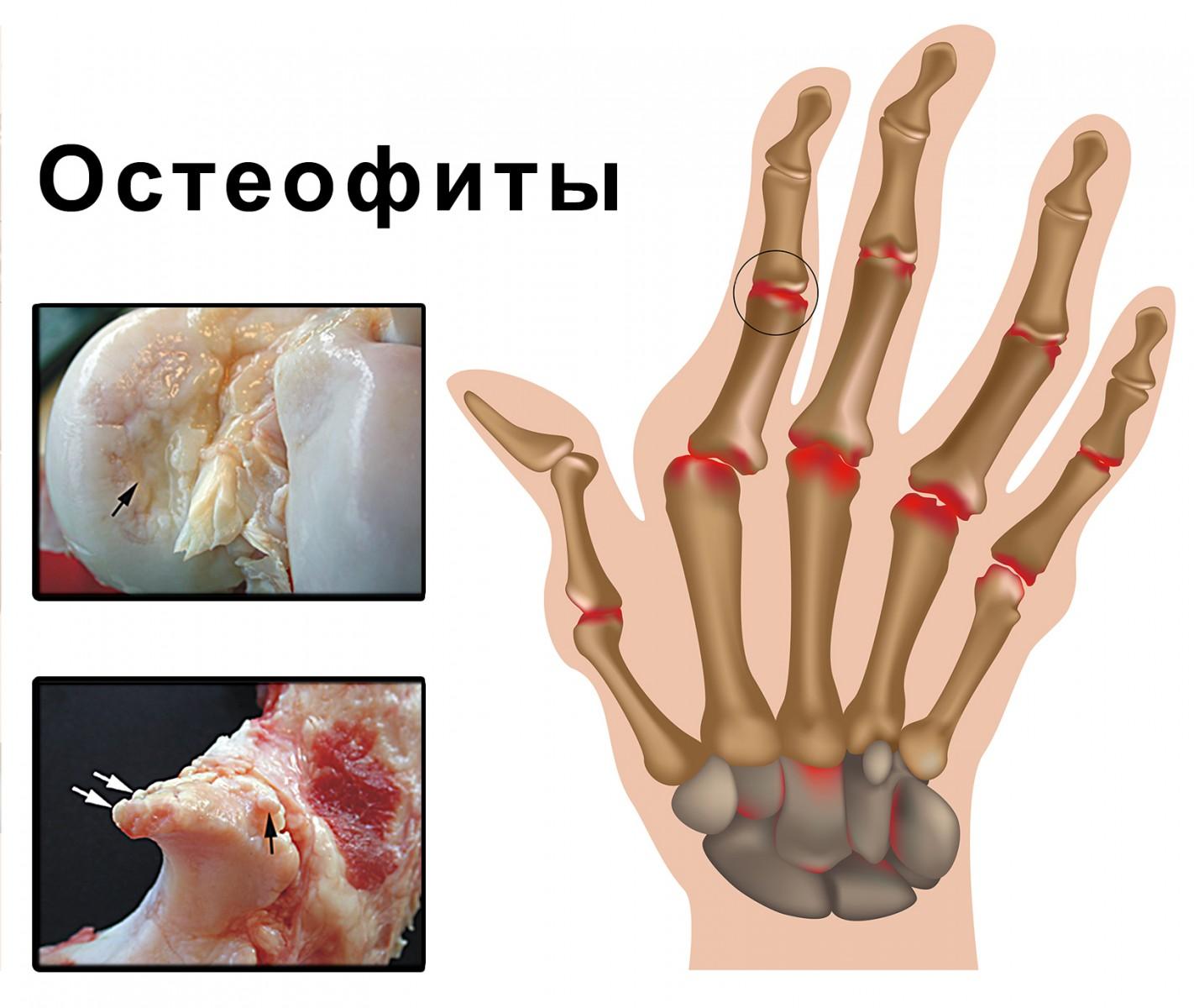 таких статей какой врач лечит артроз кистей рук тема просто